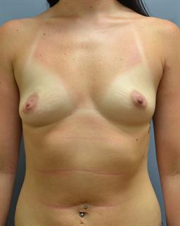 Breast Augmentation case #28 before photo