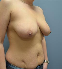 Breast Augmentation case #56 before photo