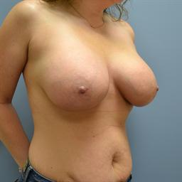 Breast Augmentation case #56 after photo
